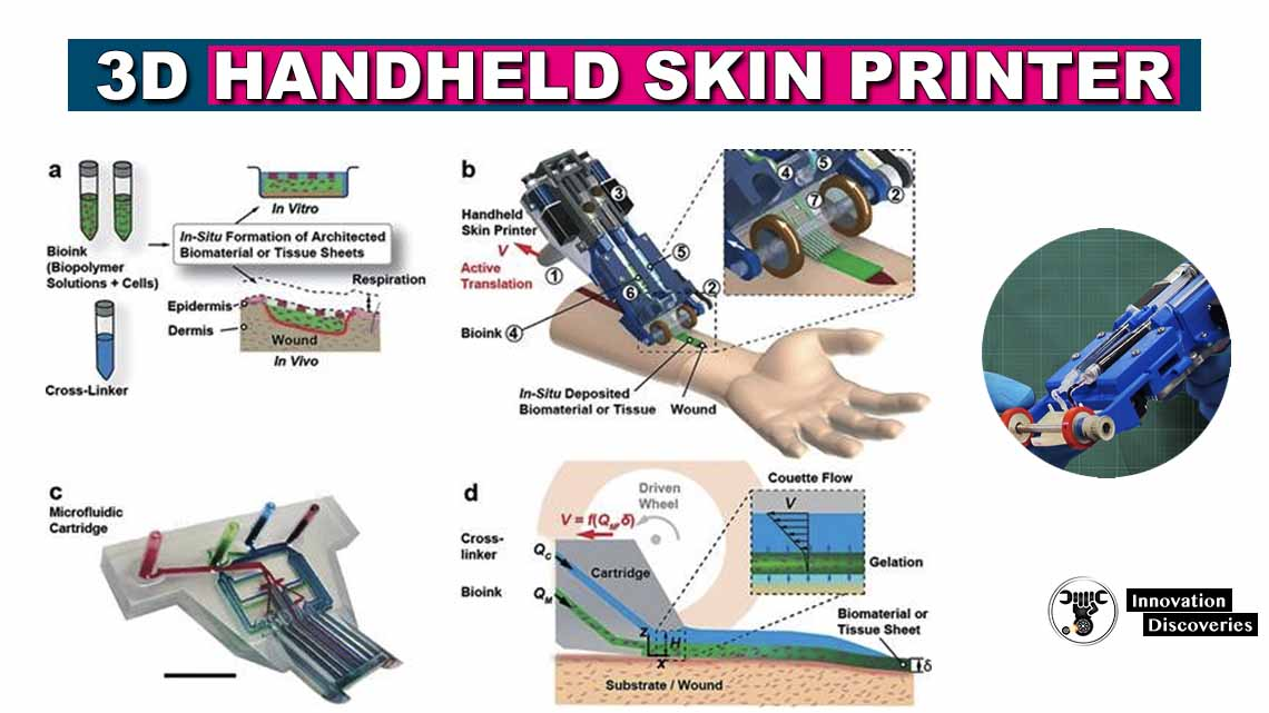 Got Bad Skin? This Novel Skin Printer Can Print A New One For You